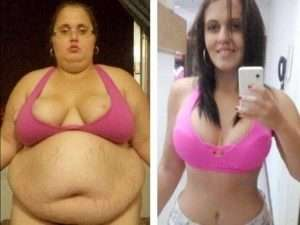 Keto Diet - Before & After